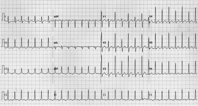 patient with long rp tachycardia